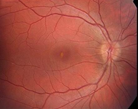 Знімок очного дна з білим центральним шрамом від сонячного опіку