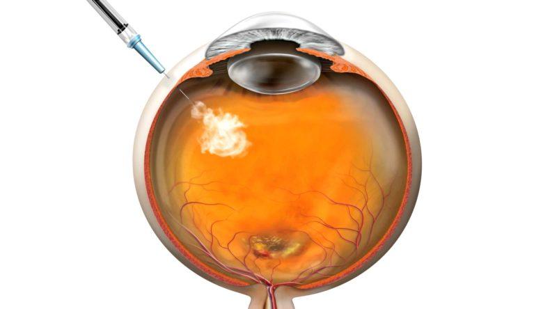 Лікування неоваскулярної ВМД: введення ліків в око