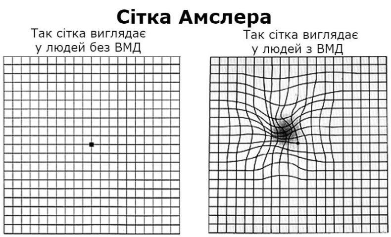Виявлення ознак ВМД за допомогою сітки Амслера