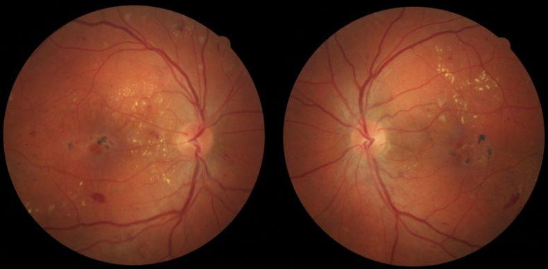 Що Ви знаєте про цукровий діабет і очі?